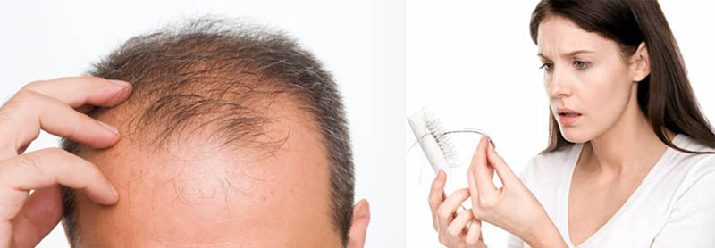 Hair loss male & Treating female pattern hair loss